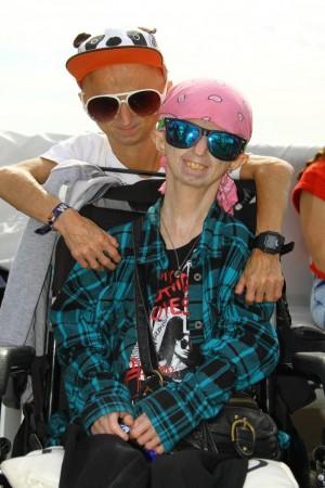 progeria5